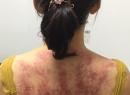 今天做了个精油推背和背部刮痧,结果大片紫黑,是湿气还是毒气太重?