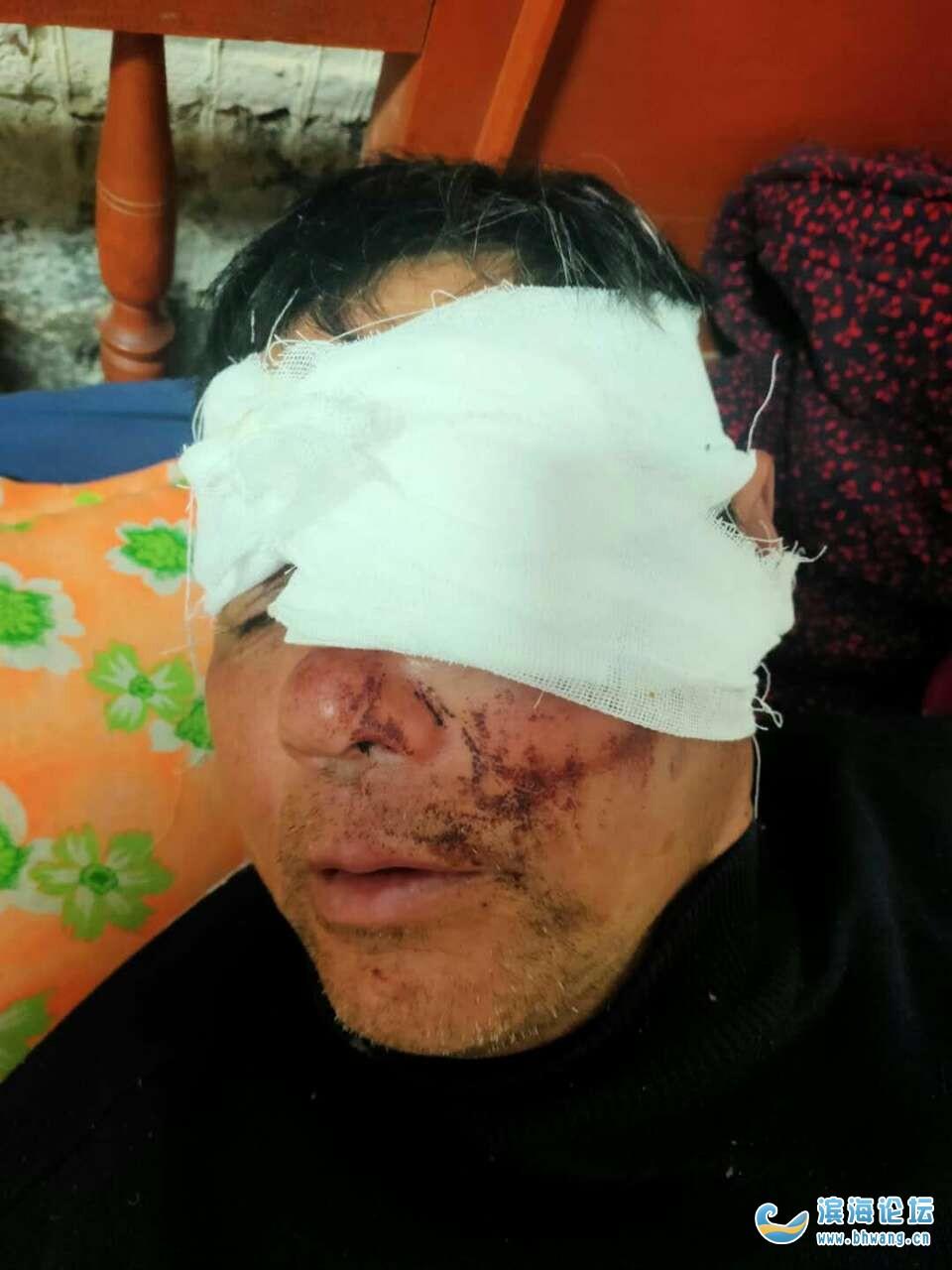 滨淮玉龙二组,顾华林被村里人打伤,凶手还在外面望政府帮忙解决,