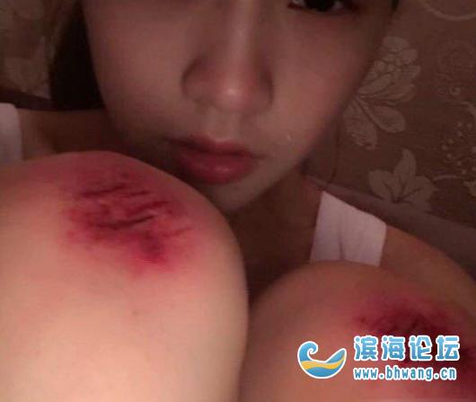 女朋友騎電動車把腿摔了,真的好心疼!