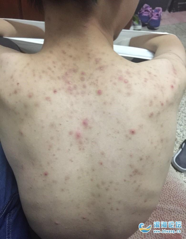 身上的痘痘触目惊心,有没有什么好办法?涂了好多种药膏都不见效