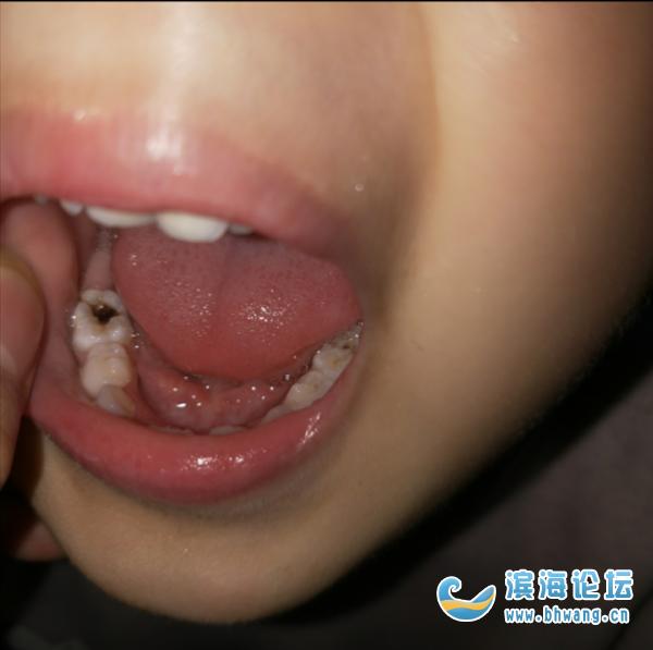 哪里給孩子看牙齒好點的??? 我家孩子大牙齒蛀黑了