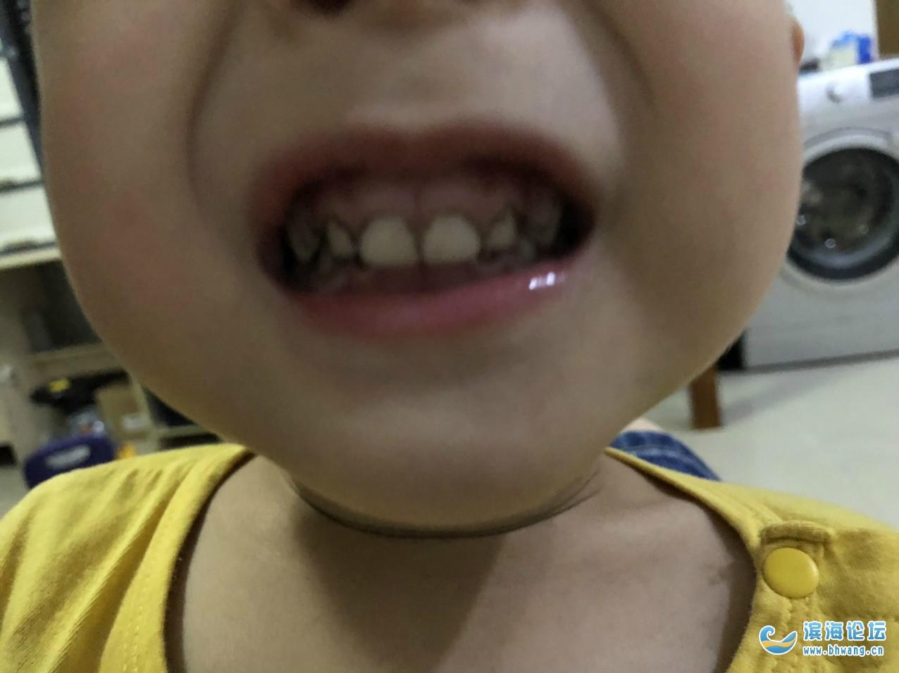 三周歲牙齒邊都是牙垢,有什么辦法清洗嗎?