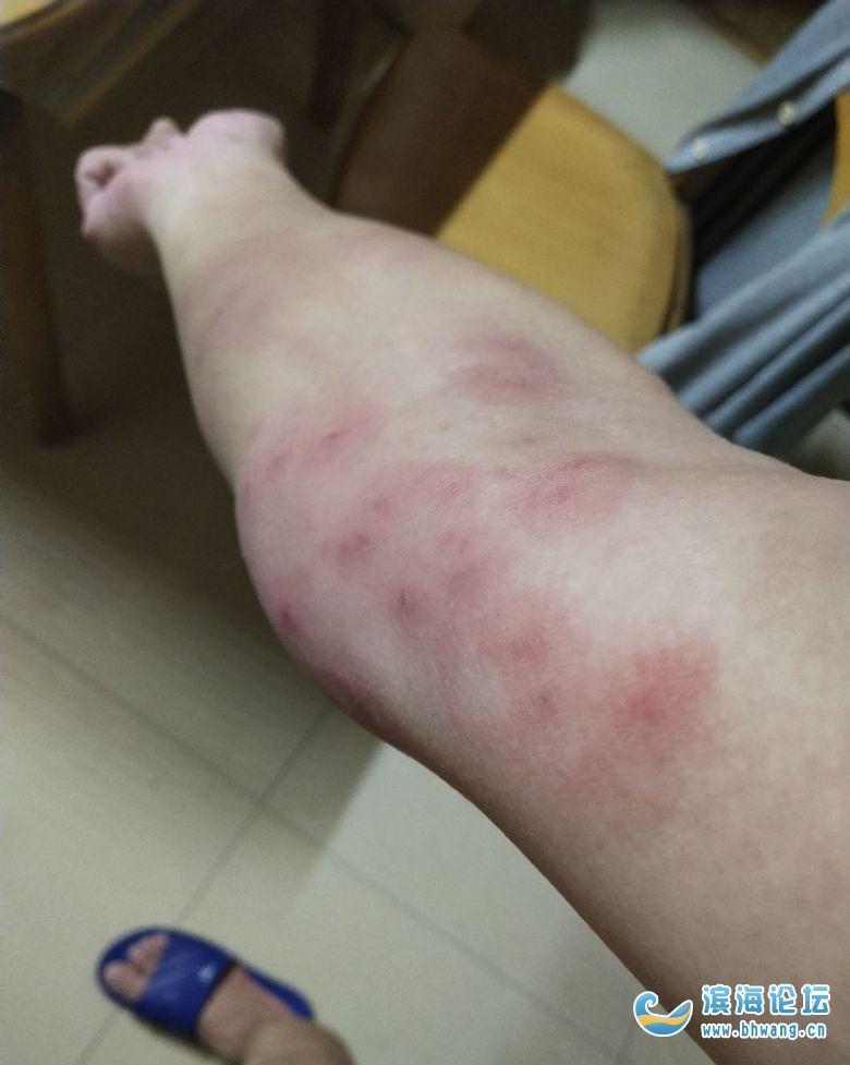 今年的梅雨季太長,導致身上生了好多紅疙瘩,不知是不是螨蟲咬的啊
