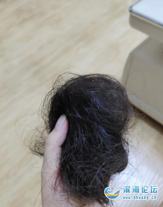 产后一次脱的发,感觉自己要秃了,有没有什么办法啊