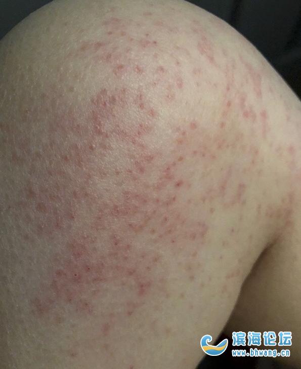 我白花花的腿上发的是什么呀?一粒粒密密麻麻的,是湿疹吗?